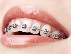 Ortodoncija-290x220